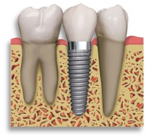 Consumer Interest In Dental Implants Sees Significant Boost