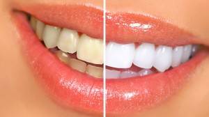 City Warns Of The Dangers Of Tooth Whitening
