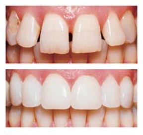 Why Porcelain Veneers Offer A Better Alternative To Composite Resin
